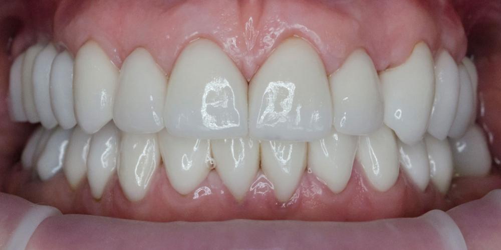 Комплексное лечение и создание красивой улыбки фото после