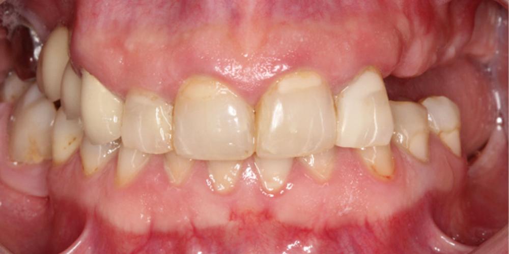 До лечения. Тотальная стоматологическая реабилитация пациента с использованием 13-ти имплантов и 28 виниров