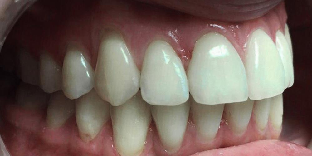 Установка металлической брекет-системы для выравнивания зубного ряда