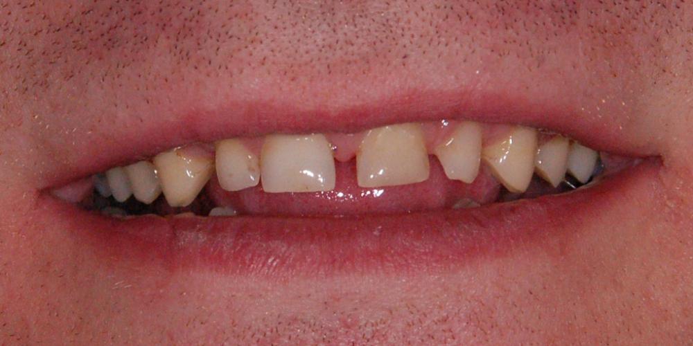 Вид улыбки до обращения в клинику. Восстановление зоны улыбки винирами empress e-max