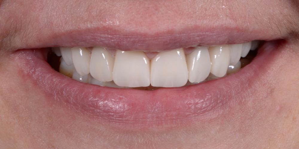 улыбка после Тотальная стоматологическая реабилитация пациента с использованием 13-ти имплантов и 28 виниров