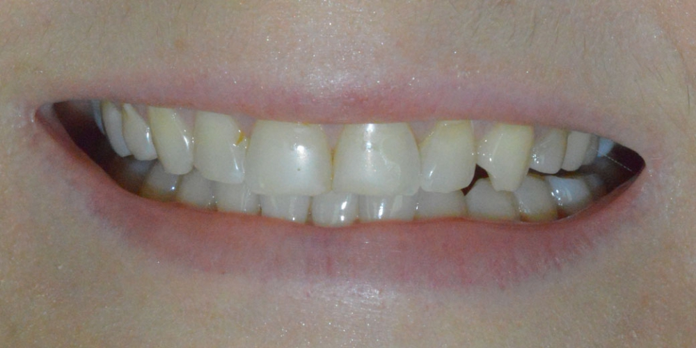 Преображение улыбки керамическими винирами Emax