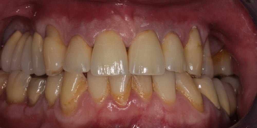 Лечение и протезирование зубов вкладками и металлокерамическими коронками