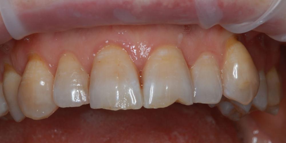 Результат наращивания двух передних зубов