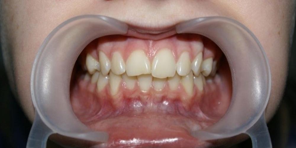 Результат выравнивания зубов на нижней и верхней челюстях