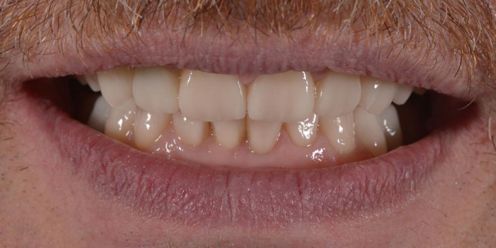 Результат. Тотальная стоматологическая реабилитация пациента: 12 имплантов + 28 виниров
