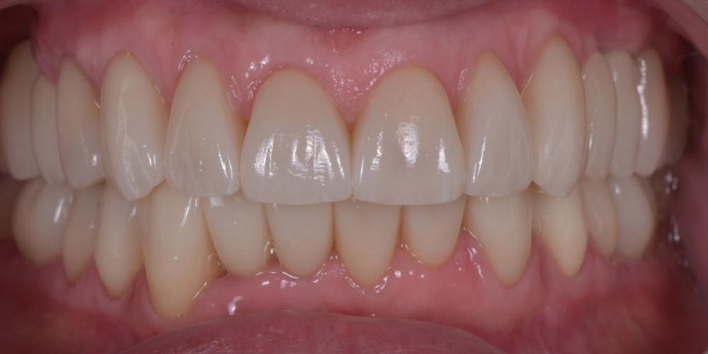 После лечения. Тотальная стоматологическая реабилитация пациента: 6 дентальных имплантов, 28 керамических виниров