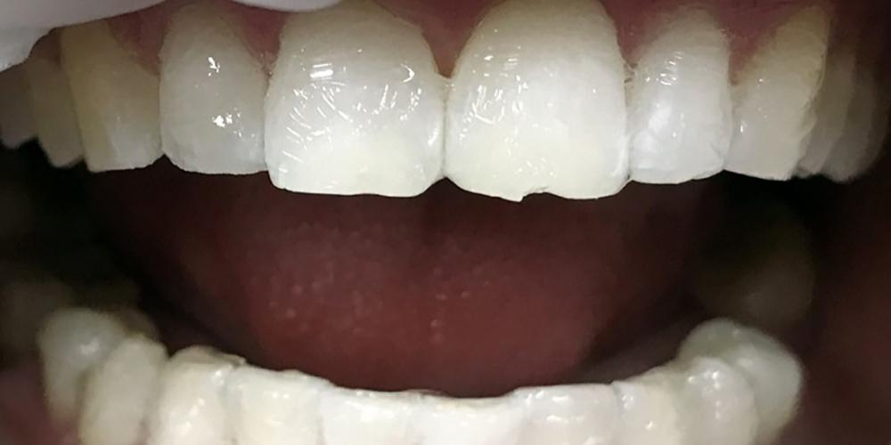 Результат отбеливания зубов системой Зум 3