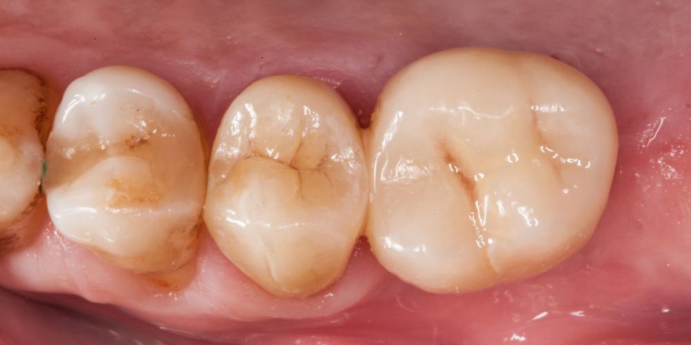 Готовый результат. Протезирование зуба после имплантации