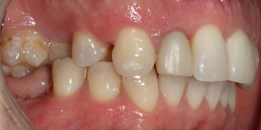 После проведения комплексной диагностики с применением фотопротокола поставлен диагноз: вторичное частичное отсутствие зубов на верхней и нижней челюсти осложненное множественными нарушениями положения естественных зубов в зубных рядах, хронический гранулематозный периодонтит  в области бокового резца. Восстановление жевателньых зубов (имплантация MIS Seven, безметалловые коронки)