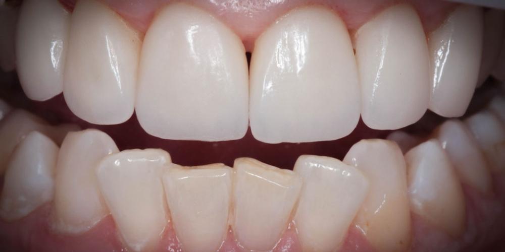 Протезирование передних зубов керамическими винирами Емах фото после