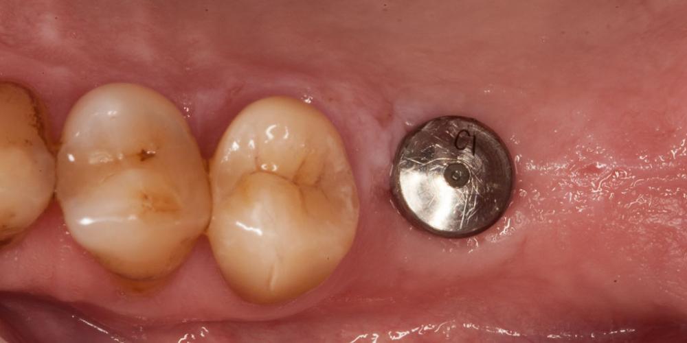 Пациенту был установлен дентальный имплант. Через 6 месяцев установлен стандартный формирователь десны. Протезирование зуба после имплантации