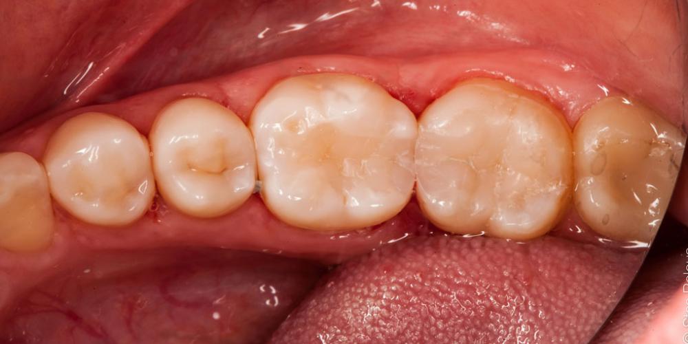 Жалоба на застревание пищи между зубами 36 и 37