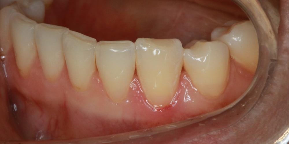 После лечения Лечение кариеса в зоне линии улыбки