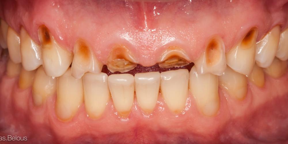 Исходная ситуация после закрытия эрозии. Полное воссоздание верхнего зубного ряда