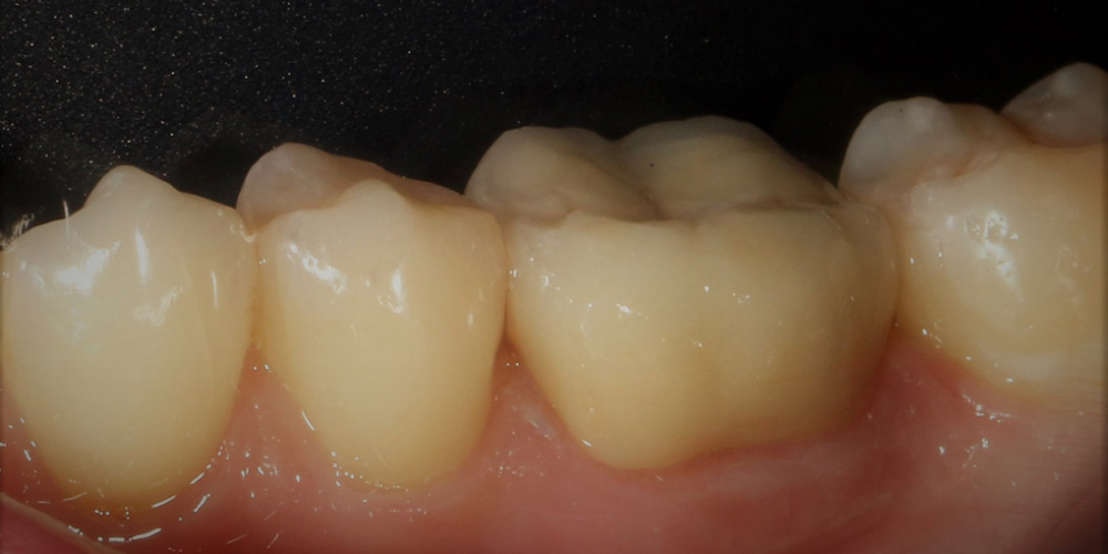 Протезирование жевательного зуба безметалловой коронкой