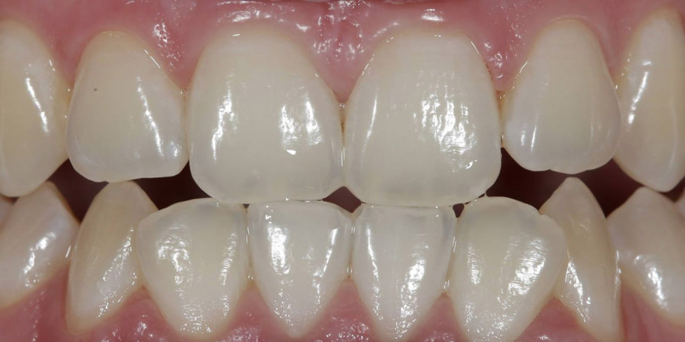 Результат отбеливания зубов ZOOM, решение проблемы дисколорита зубов