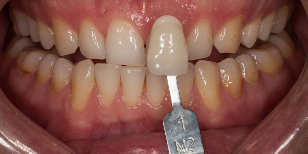 Фото до отбеливания зубов Отбеливание зубов безопасно