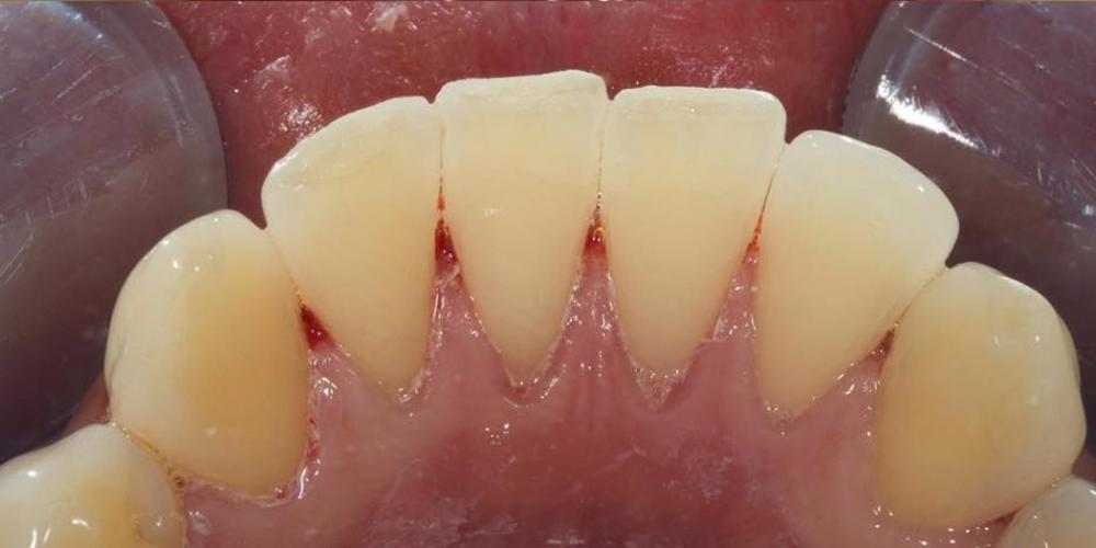 Фотография после чистки зубов под микроскопом. Профессиональная гигиена зубов под микроскопом