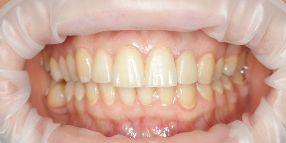Восстановление эстетики передних зубов керамическими винирами, 4 винира