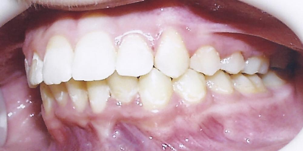 Фото после снятия металлических брекетов. Результат исправления скрученности зубов металлическими брекетами