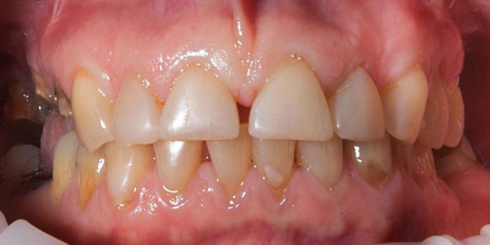 Комплексное лечение и создание красивой улыбки фото до
