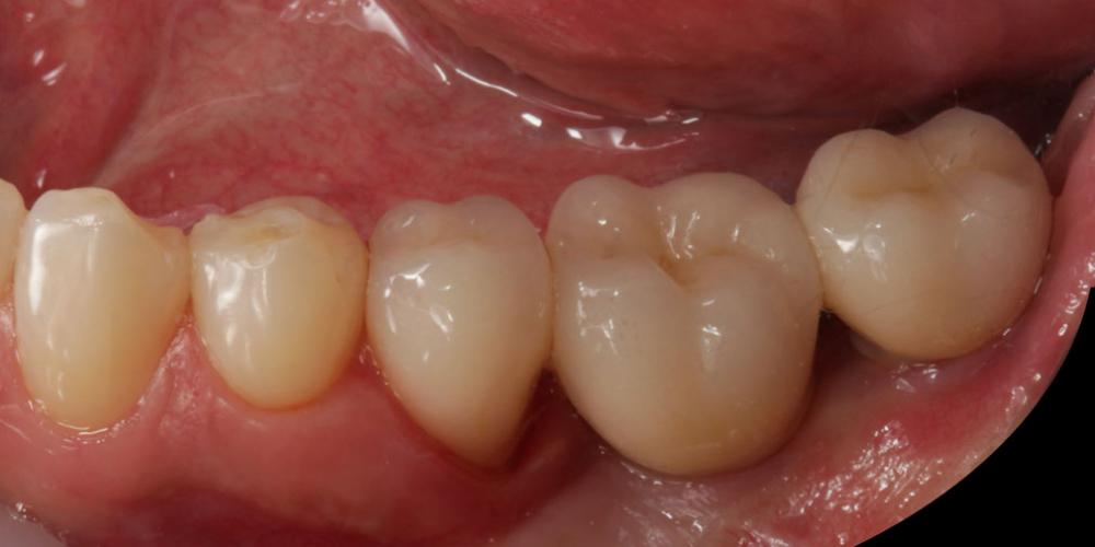 готовая работа (цельнокерамические реставрации на зубах и имплантатах с опорой на индивидуальные циркониевые абатменты) в полости рта 1 Цельнокерамические реставрации на зубах и имплантатах с опорой на индивидуальные абатменты