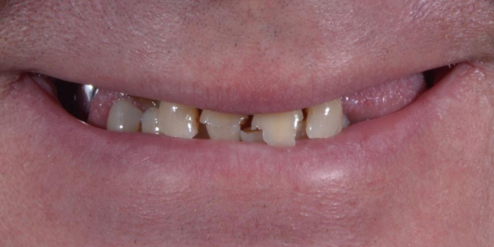 До. Полное восстановление двух челюстей на 16 имплантатах