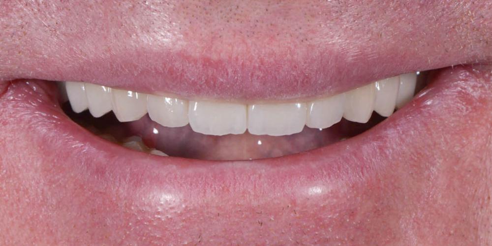 После. Полное восстановление двух челюстей на 16 имплантатах