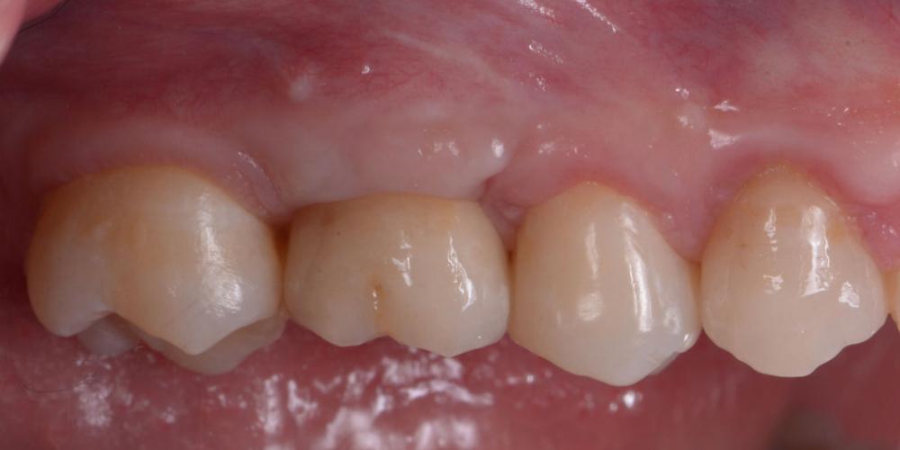 После (спустя 1 год) Восстановление зуба имплантацией + синус-лифтинг - все в один этап