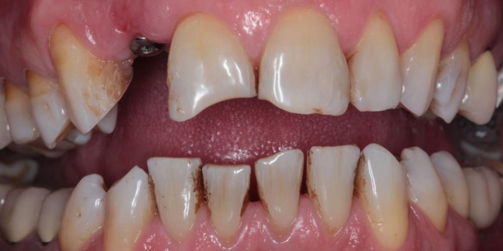 Эстетическая реабилитация зоны улыбки керамическими винирами, имплантация