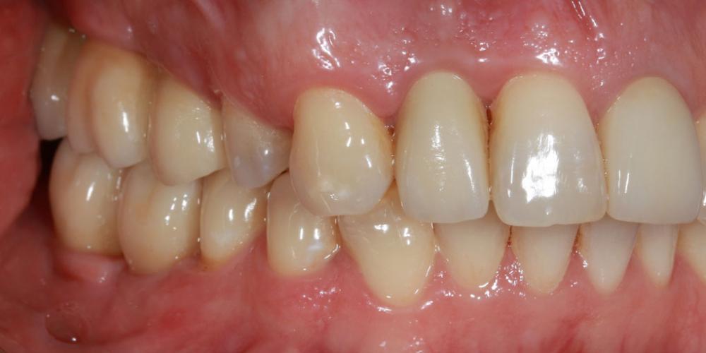 Вид через 7 дней после фиксации постоянных коронок на верхнюю и нижнюю челюсти. Контроль слизистой и зубных соотношений. Восстановление жевателньых зубов (имплантация MIS Seven, безметалловые коронки)
