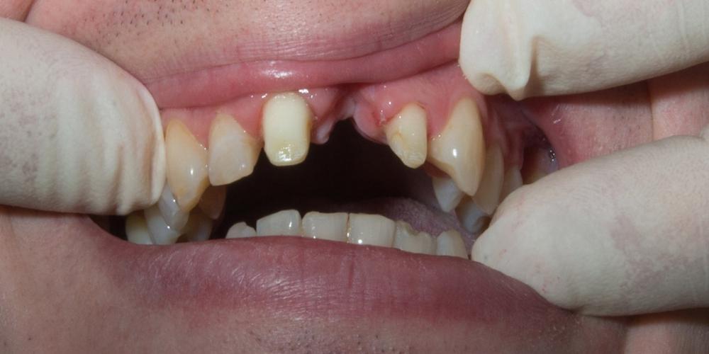Фотография до лечения. Отсутствие 21го зуба после травмы. Установка моста из диоксида циркония на передние зубы