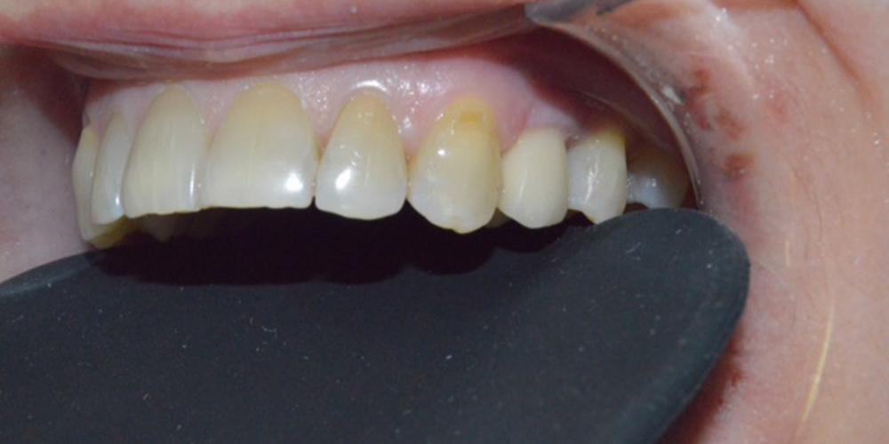 Фото после протезирования, имплантат + коронка. Удаление зуба с одномоментной имплантацией Астра Тек