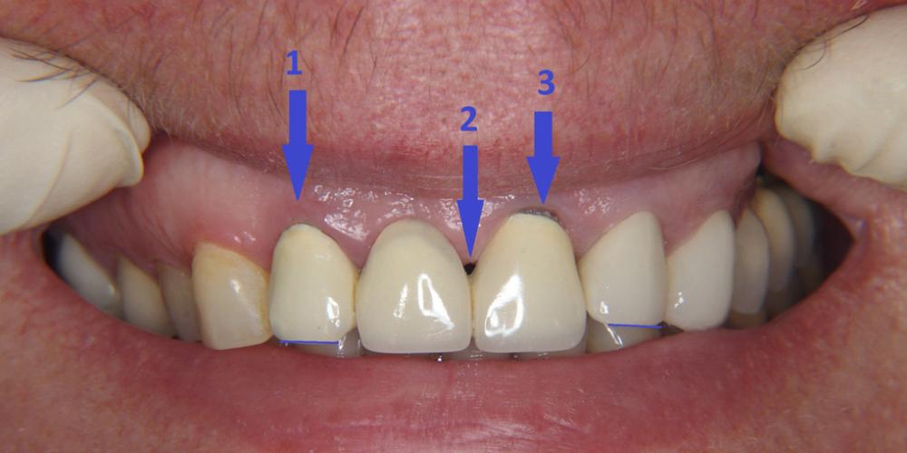 Фото до лечения. Замена металлокерамических коронок на линии улыбки
