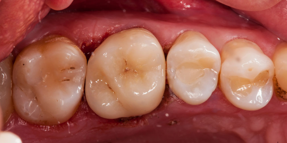 Неожиданный скол зуба 26