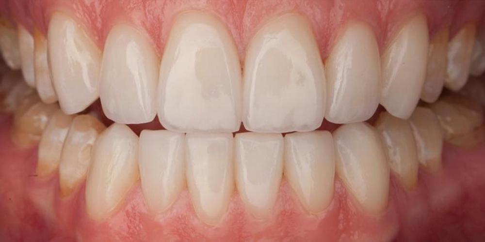 Фотография зоны улыбки после установки 12ти виниров на передние зубы. Супертонкие керамические виниры на передние зубы