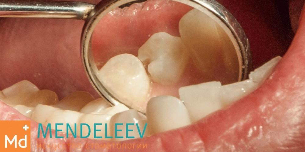 Лечение кариеса зуба 4.4