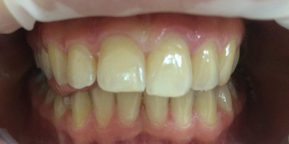 Наращивание переднего зуба