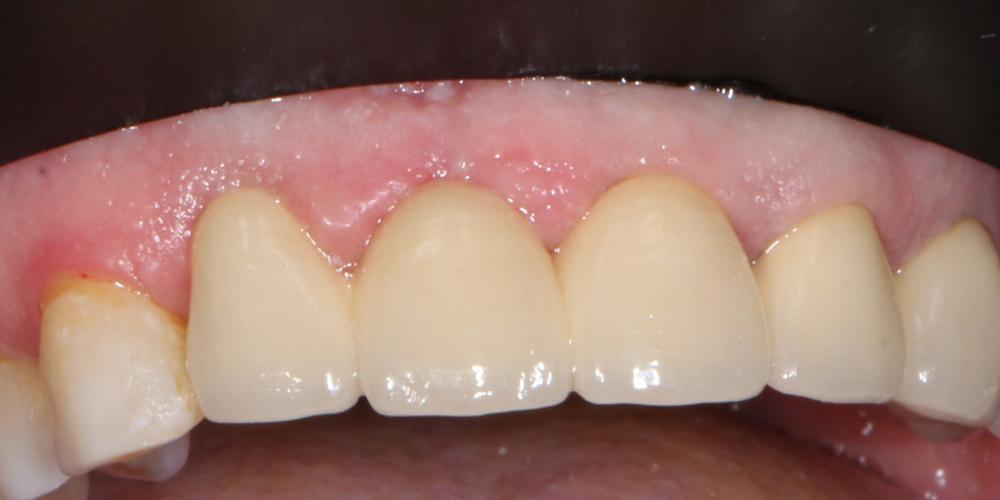 Фото после лечения. Замена металлокерамических коронок на линии улыбки