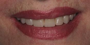 Результат изготовления полного съемного протеза фото после лечения
