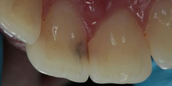 Лечение кариеса на фронтальных зубах с  использованием дентального микроскопа фото до лечения