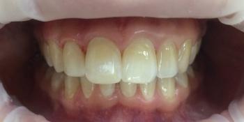 Наращивание переднего зуба фото после лечения