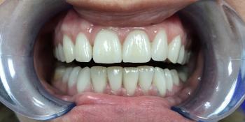 Установка виниров на зубы верхней и нижней челюсти фото после лечения