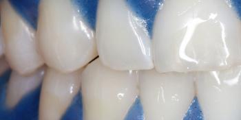 Отбеливание зубов системой отбеливания Zoom 3 фото после лечения