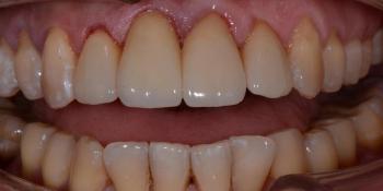 Делаем красивую улыбку, эстетическая реставрация зубов фото после лечения