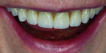 Протезирование верхней и нижней челюсти по технологии All-on-4 фото после лечения