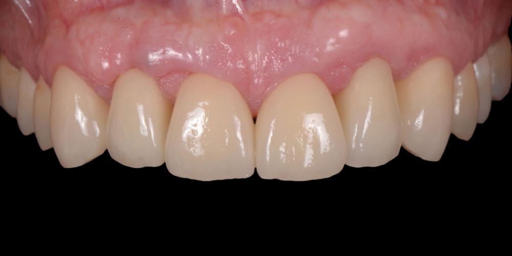 Готовая работа (цельнокерамические реставрации на зубах и имплантатах с опорой на индивидуальные циркониевые абатменты) в полости рта. Эстетическое протезирование передних верхних зубов с предварительным исправлением прикуса и импланта
