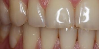 Отбеливание зубов системой отбеливания Zoom 3 фото до лечения