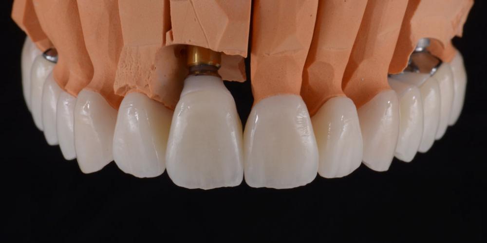 Цельнокерамические реставрации на зубы (виниры, коронки) и импантаты на индивидуальных абатментах из диоксида циркония на модели. 5 имплантатов, 28 керамических реставраций, наращивание костной ткани, пластика десны